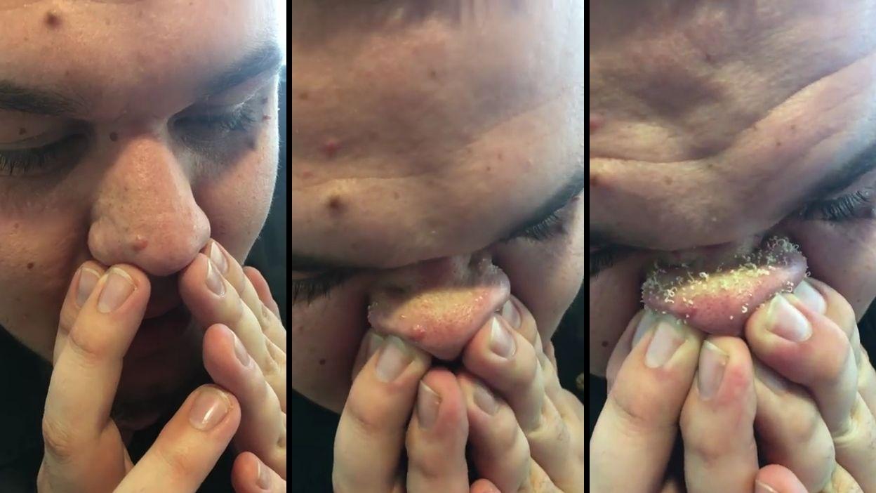 enlever des points noirs sur le nez